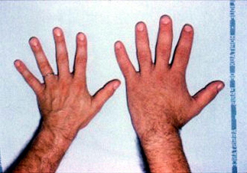 Akromegalia